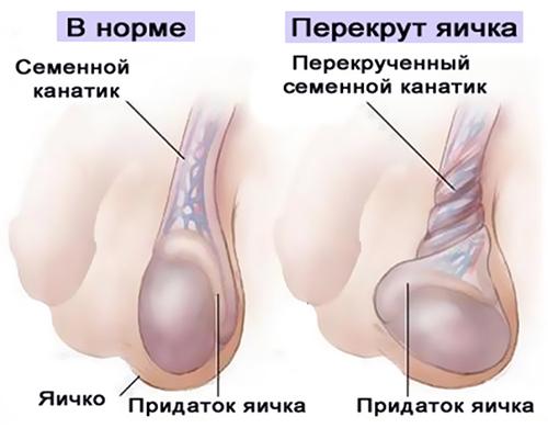 Перекрут гидатиды яичка или чем опасен недуг?
