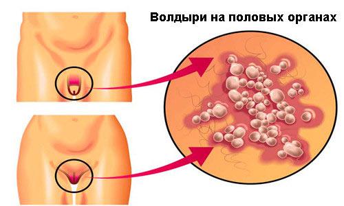 Белые пятна на члене: причины патологии. Пигментные пятна на половых органах у мужчин: причины и следствие