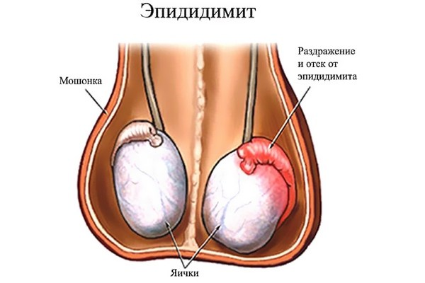 Периодически болит правое яичко