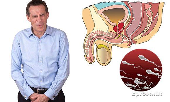 Почему бывают сгустки в сперме у мужчин