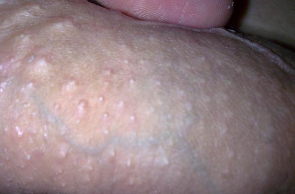Генитальный дерматит — Аллергия