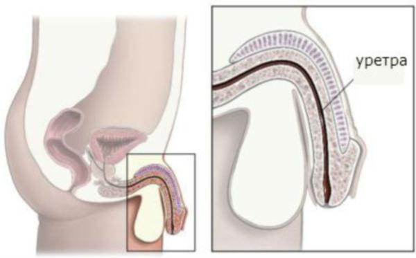 После мочеиспускания дискомфорт у мужчин — Prostatittut