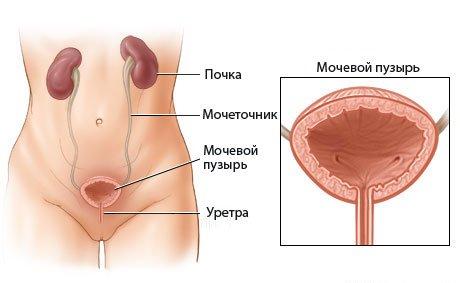 Болезни мочевого пузыря и их признаки у мужчин