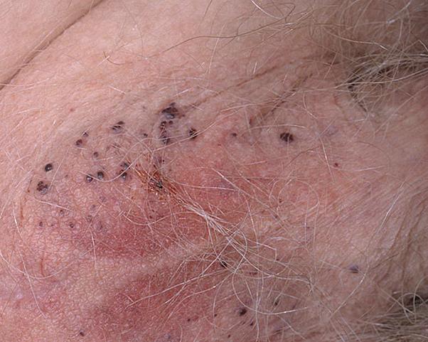 Черные точки на яичках у мужчин: фото, причины, лечение