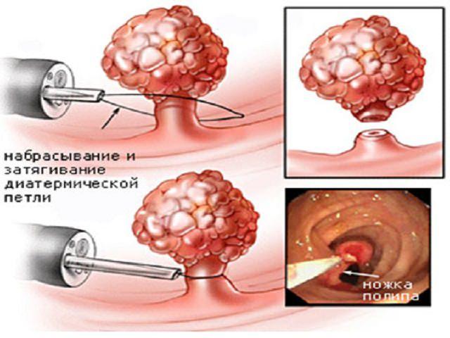 Откуда в мочевом пузыре появляются полипы что делают для их лечения