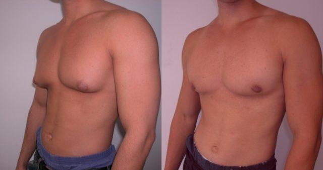 Растет грудь у мужчины: причины заболевания