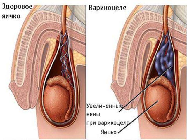 Тянущая боль в левом яичке у мужчин