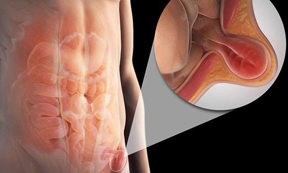 Может болеть левое яичко из за простатита кто вылечился от простатита
