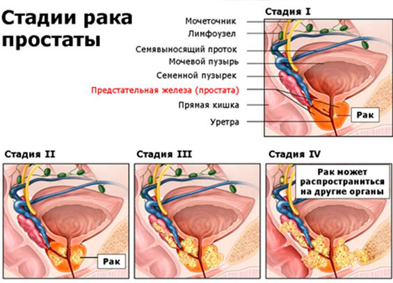 Тянет живот у мужчин — Заболевание желудка
