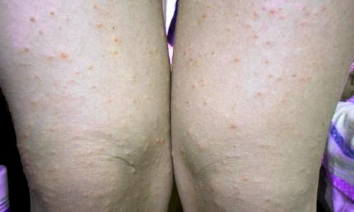 Гнойные прыщи мужчин - на ногах причины, на бедрах, на спине, на ягодицах, на лице, на затылке, на носу, на гениталиях у мужчин
