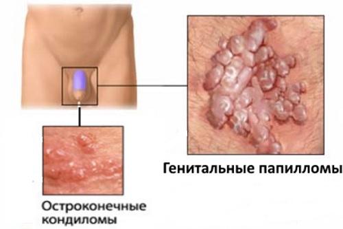 Вирус папилломы hpv 16 у мужчин