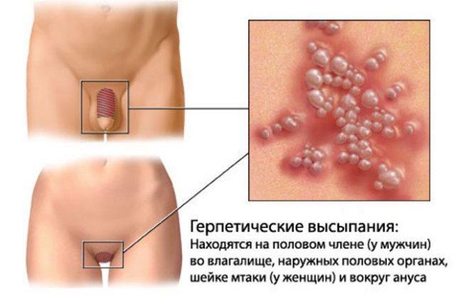 Отчего возникают язвочки на головке полового члена у мужчин. Язвы на головке у мужчин: причины, диагностика и методы лечения