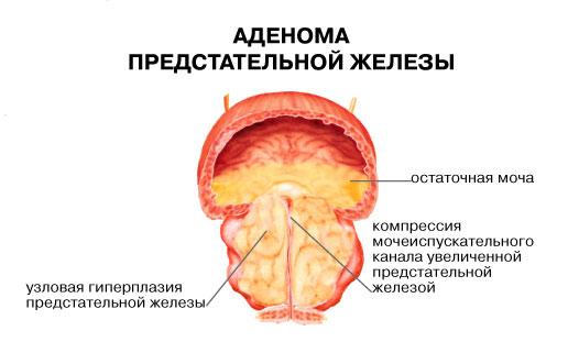 Воспаление предстательной железы причины