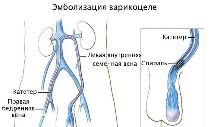 Причины затрудненного мочеиспускания у мужчин диагностика заболеваний и лечение