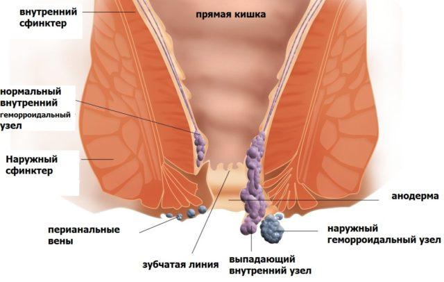 Жжение в заднем проходе у мужчин — причины и лечение