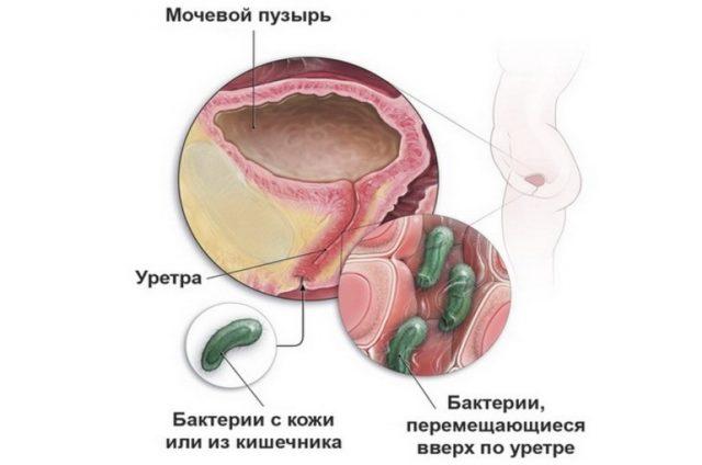 Какие бывают болезни мочеполовой системы у мужчин