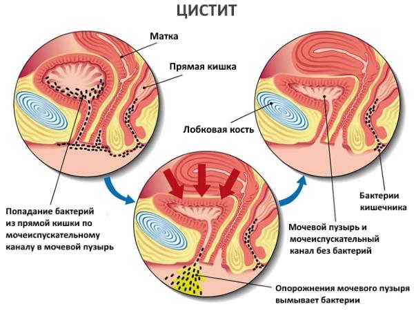 Появление инфекции мочеполовой системы у мужчин и их лечение