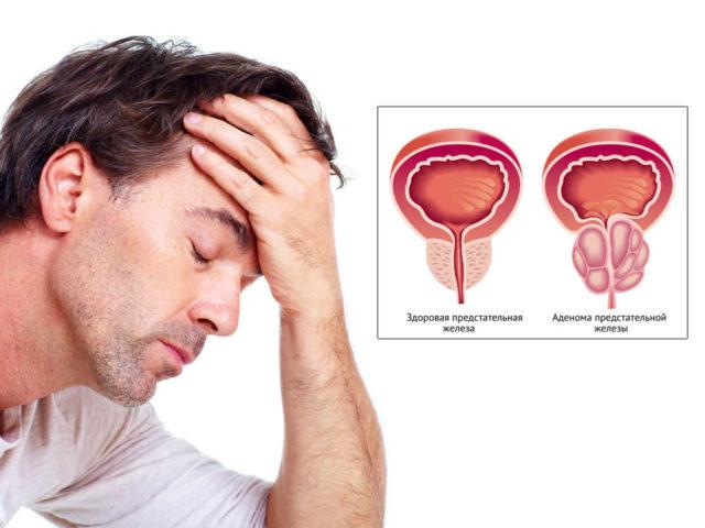 Возможность лечения синдрома микропениса