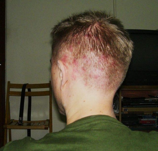 Прыщи на голове в волосах у мужчин – как избавиться от них?