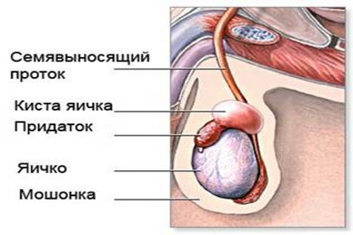 Причины уплотнения в яичке у мужчин