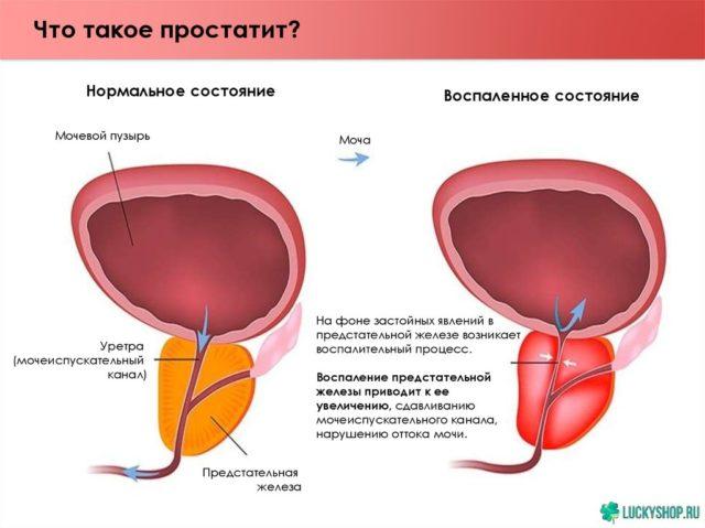 Пиоспермия у мужчин: что это такое, причины, лечение, возможность беременности