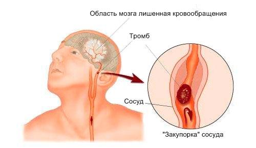 Инсульт симптомы первые признаки у мужчин