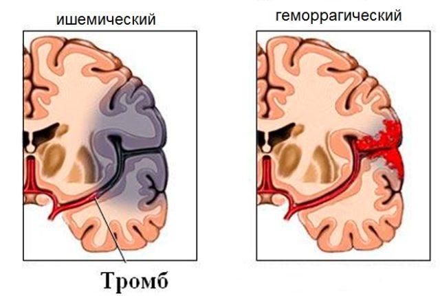 Симптомы инсульта у мужчины - как распознать?