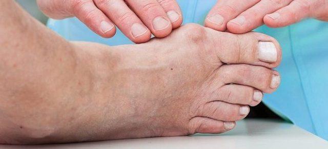 Признаки и симптомы подагры у мужчин