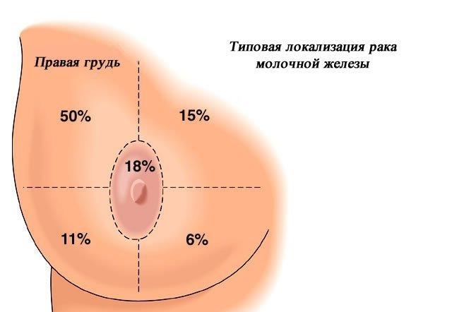 Протекание рака молочной железы у мужчин