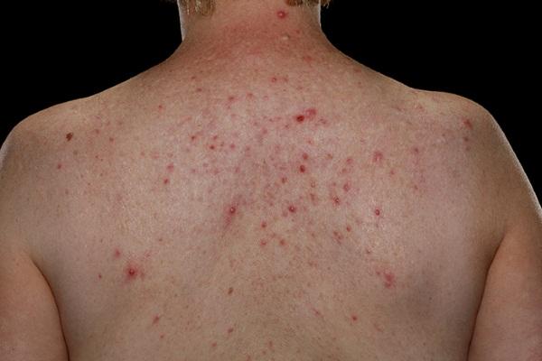 Угри на спине у мужчин лечение
