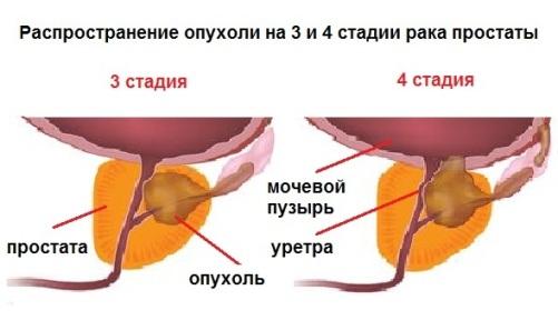 Лечение рака предстательной железы: методы лечения рака простаты, онкология предстательной железы, лечение