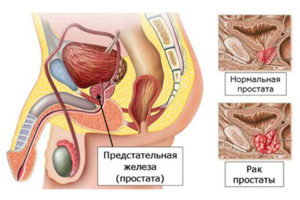 Рак предстательной железы: прогноз выживаемости