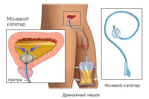 Рак простаты: операция по удалению предстательной железы