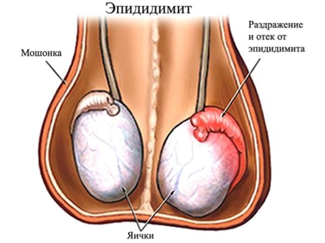 Резь и боль при мочеиспускании у мужчин — причины и лечение