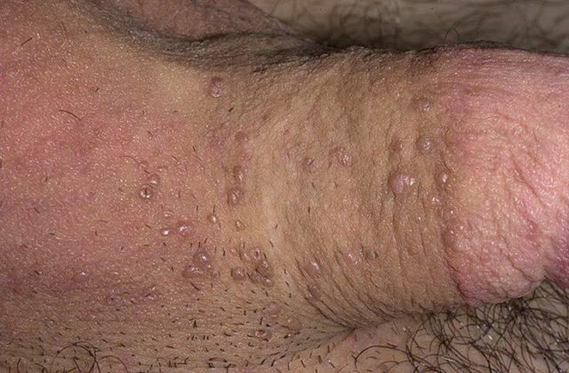 Вирус папилломы человека у мужчин