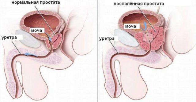 Застойный простатит у мужчин: причины и симптомы,излечимо ли воспаление, методы лечения