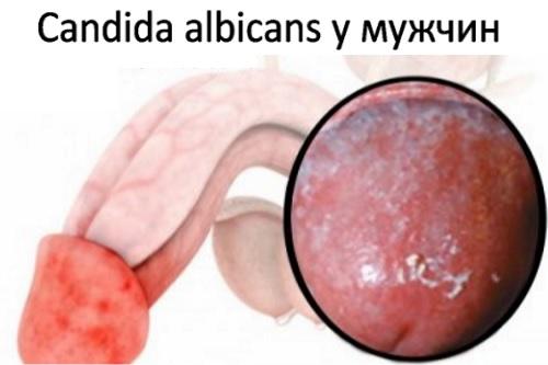Значение Candida albicans в анализах у женщин и мужчин
