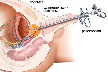 Подготовка к уретроскопии