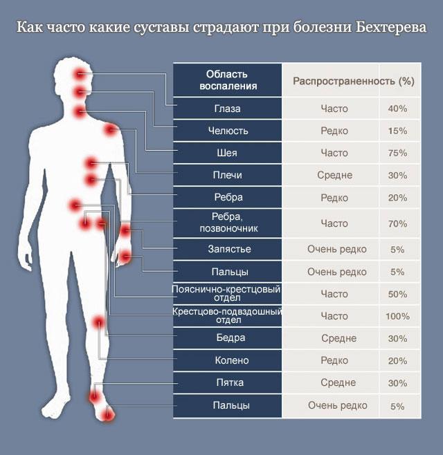 Болезнь Бехтерева у мужчин: симптомы, последствия, лечение