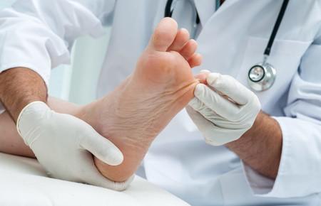 Что такое гипергидроз стоп ног причины его возникновения и методы лечения
