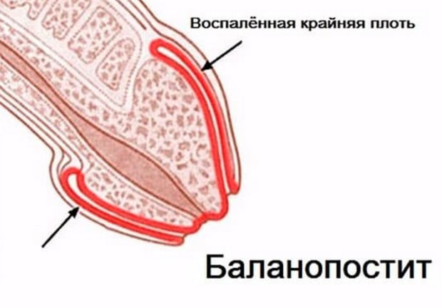 Инкубационный период молочницы