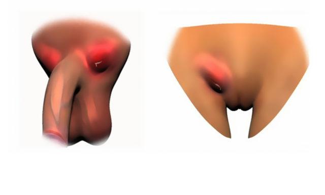 Распространенные ЗППП у мужчин: признаки и симптомы