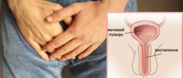 Неспецифический уретрит у мужчин симптомы