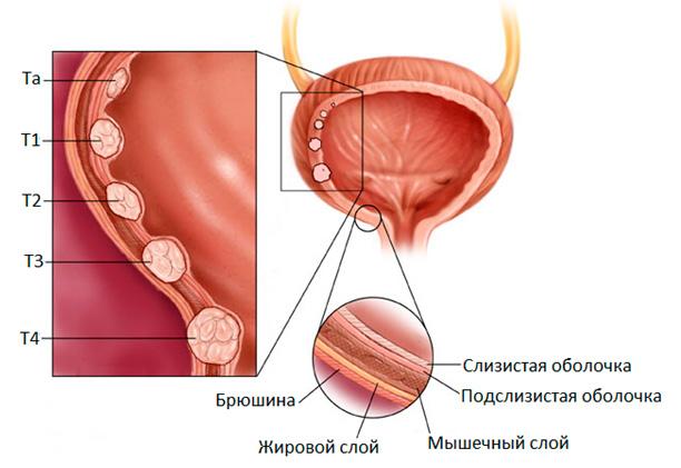 Удаление опухоли мочевого пузыря у мужчин