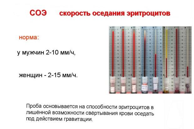 Анализ крови рой 50