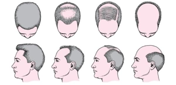 Как отрастить волосы мужчине на лысине