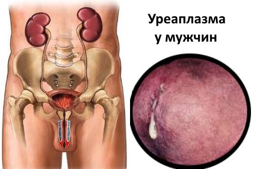 Уреаплазма специес у мужчин