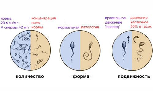 Что можно постановить из спермограммы