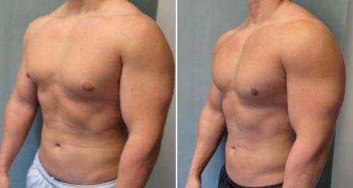 Как убрать грудной жир у мужчин
