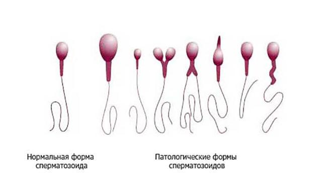 Как увеличить количество спермы у мужчины